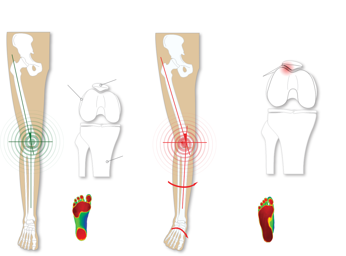 Optimal foot vs Over pronated foot and knee pain